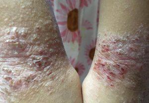 ノニでアトピー性皮膚炎が改善した写真(使用前)